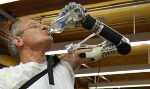 deka-arm-le-bras-bionique-11156850xysft
